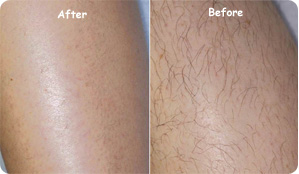 Laser Hair Removal Winston Salem Nc 27103 Perfact Brow Art By